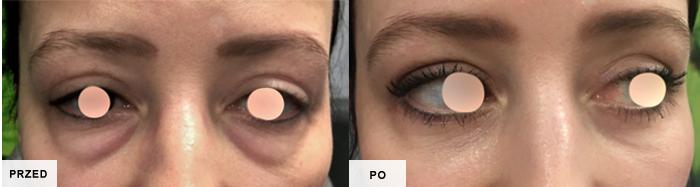 blefaroplastyka efekty przed i po