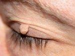 Włókniak na oku