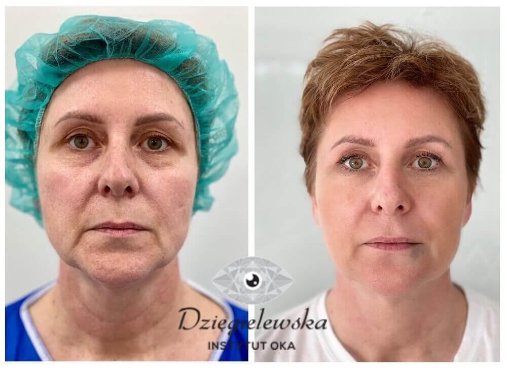 Przeszczep tłuszczu na skórę na twarzy w naszej klinice w Warszawie