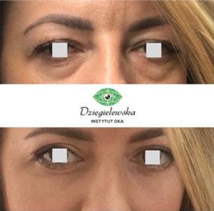 Worki pod oczami - efekty przed i po zabiegu ich likwidacji