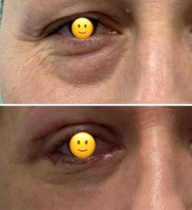 Chirurgiczne usuwanie worków pod oczami